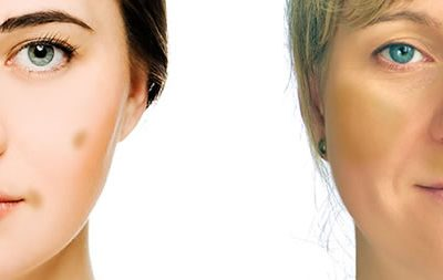 The A-Z of Understanding Pigmentation