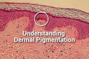 dermal-pigmentation