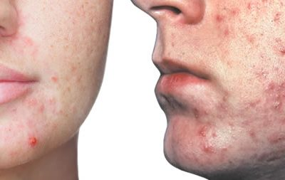 Acne: Physiology and Analysis