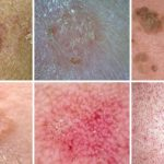 Keratolytic Skin Disorders