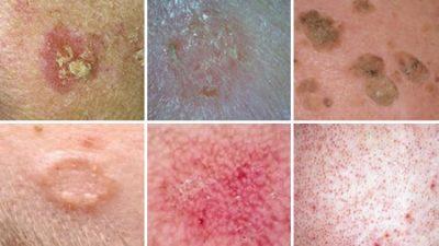 Keratolytic Skin Disorders